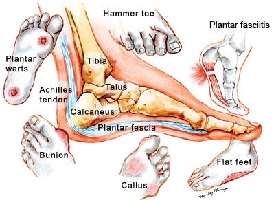 image showing various common foot problems