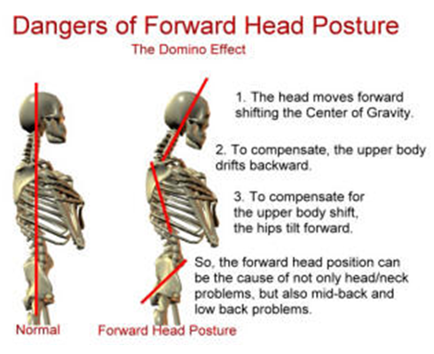 poor posture improve correct