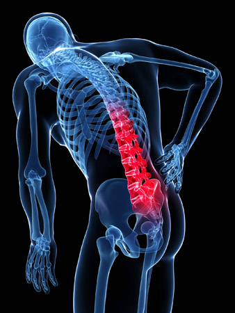 Antalgia Acute Disc Injury Mind Amp Body Chiropractic