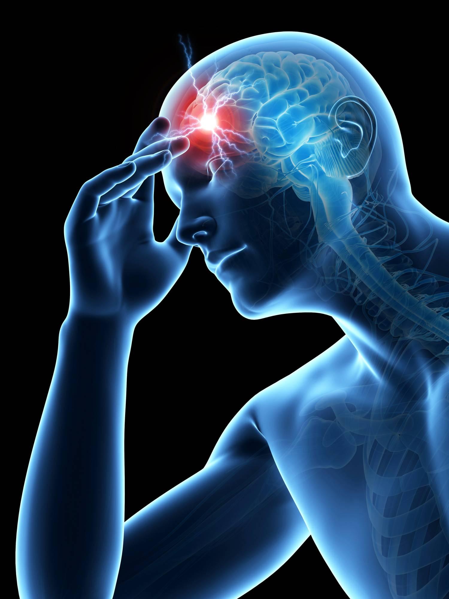 Frontal Headache Relief | Mind & Body Chiropractic