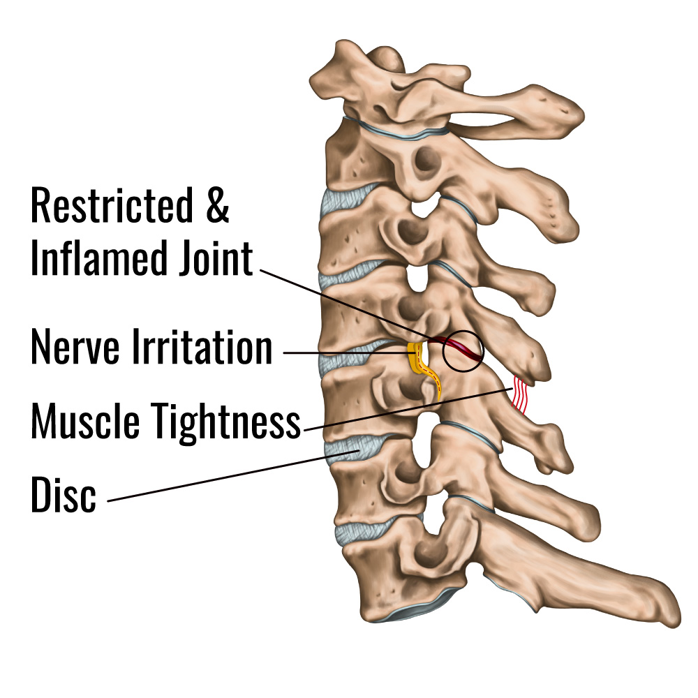 Cervical Joint Restriction causes Neck Pain - Mind & Body Chiropractic